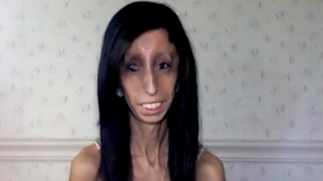 VIDEO: Lizzie Velasquez, 23, was bullied because of her rare condition.