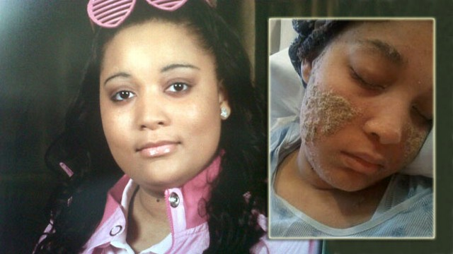 VIDEO: Shanyna Isoms mystery skin disease is baffling her doctors in Baltimore.