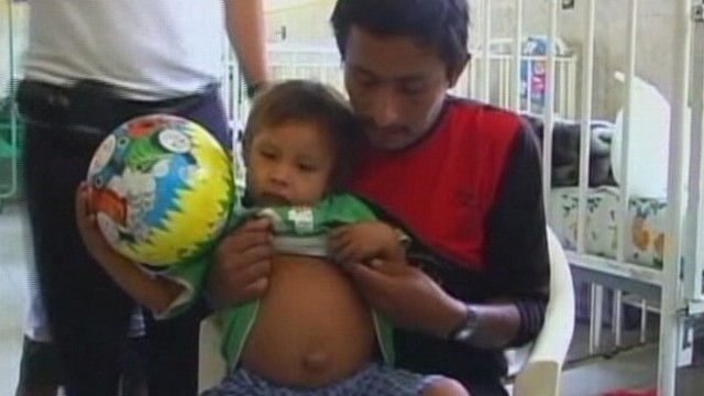 VIDEO: Doctors in Peru plan to remove partially formed fetus absorbed by brother.