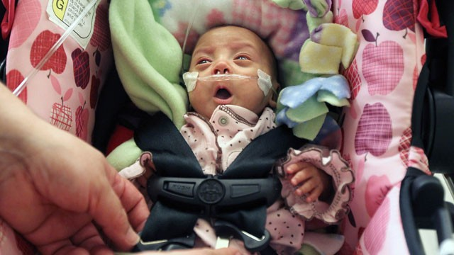 "PHOTO: ""Miracle Baby"" sent home from hospital"