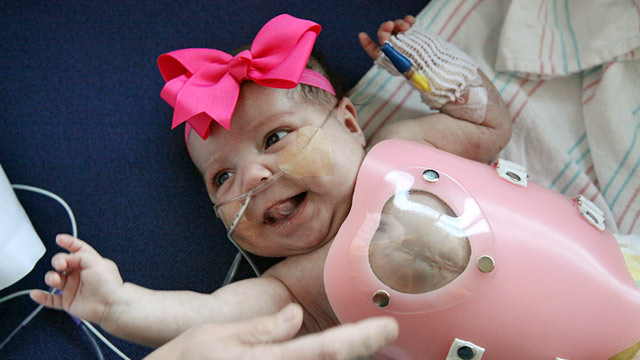 Baby born with heart outside body 'doing well'