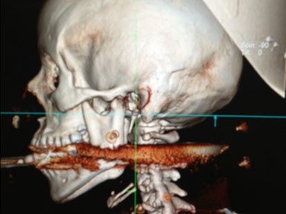 PHOTO: This May 6, 2013 image released May 8, 2013, by Rio de Janeiro State Health Department, shows the spear that was accidentally shot through the mouth of Elisangela Borborema Rosa, in Arrial do Cabo, Brazil, who