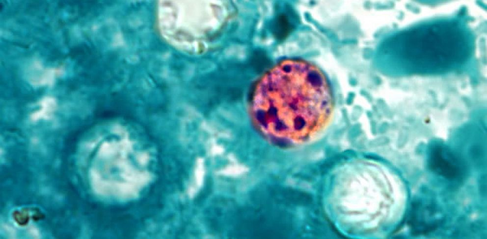PHOTO: Stool sample with Cyclospora
