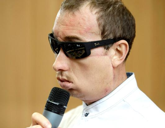 Man Steps Out After Face Transplant