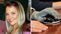 PHOTO: Aimee Copeland received two new bionic hands this week from Touch Bionics in Ohio.