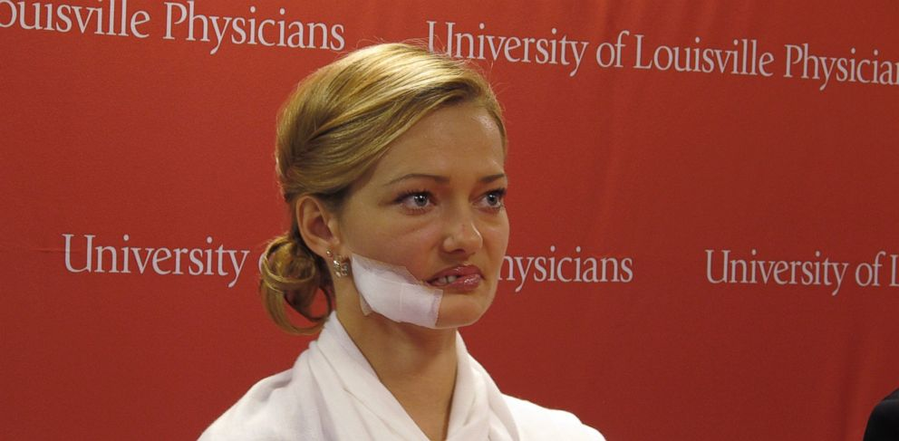PHOTO: Lessya Kotelevskaya attends a news conference on Oct. 29, 2013, in Louisville, Ky., where her surgeon discussed her upcoming surgeries to undo disfiguring damage done to her face when she lived in Kazakhstan.