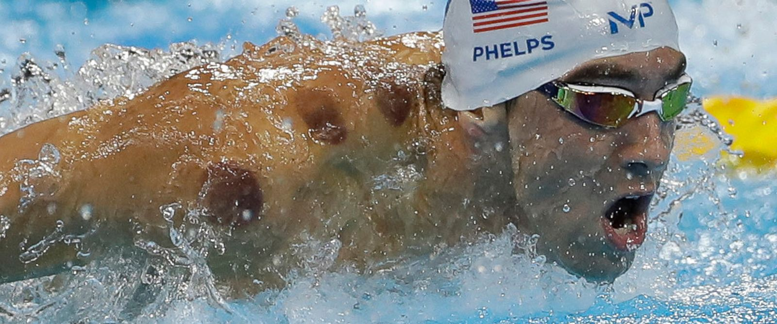 PHOTO: Michael Phelps competes in a heat of the mens 200-meter butterfly during the swimming competitions at the 2016 Summer Olympics, Aug. 8, 2016, in Rio de Janeiro, Brazil.