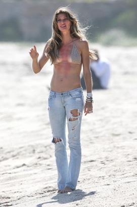 Celebs With Painful Sunburns