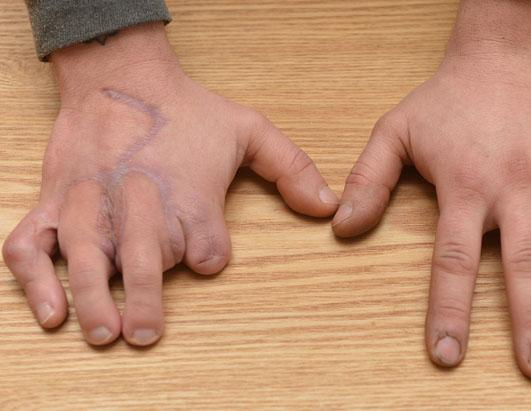 Man's Missing Fingers Replaced by Toes