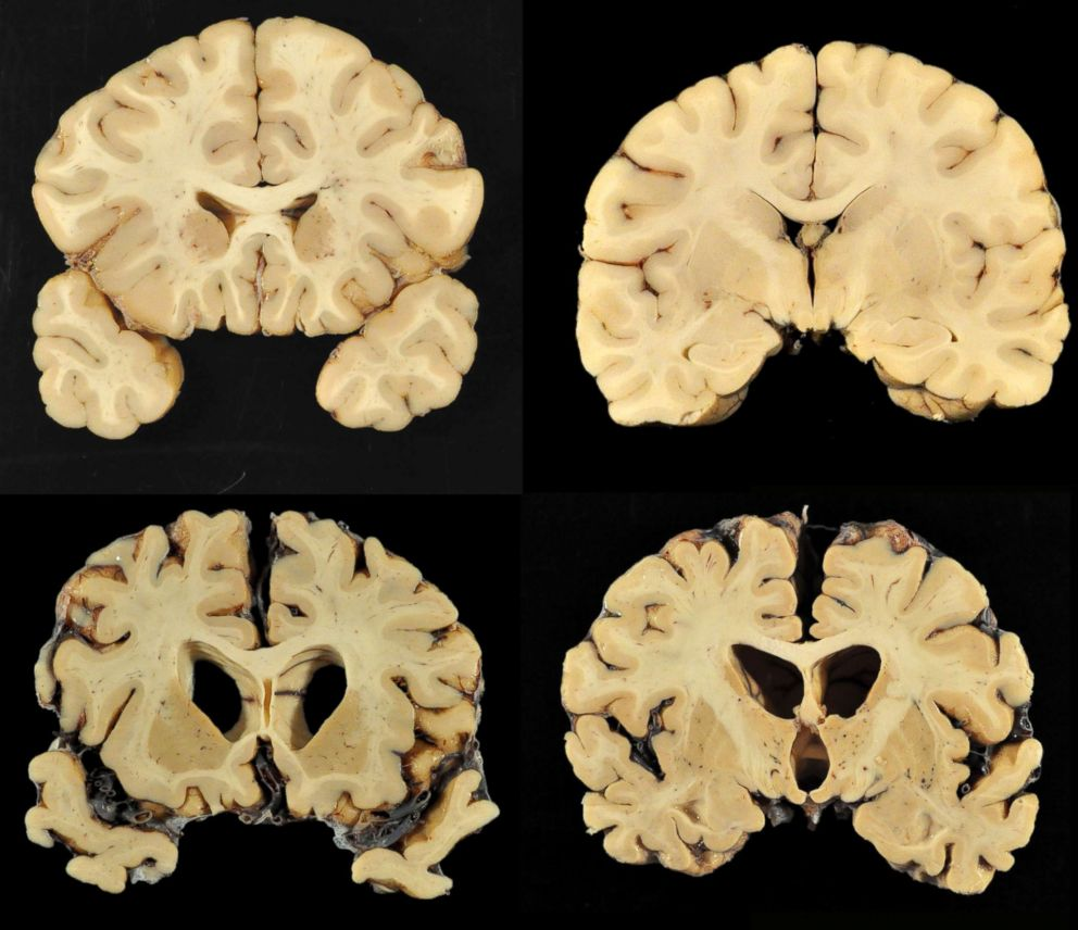 PHOTO: This combination of photos provided by Boston University shows sections from a normal brain, top, and from the brain of former University of Texas football player Greg Ploetz, bottom, in stage IV of chronic traumatic encephalopathy.