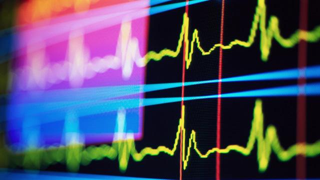 PHOTO: EKG