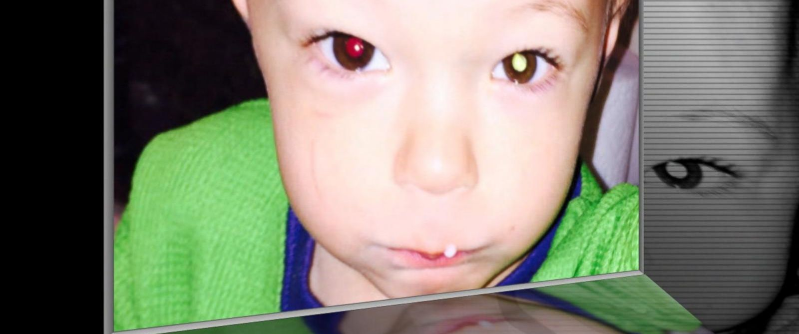 PHOTO: Avery Fitzgerald, 2, of Illinois is pictured in a photo taken by his mother before he was diagnosed with cancerous tumors in his eye.