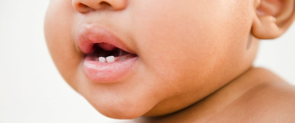PHOTO: An infants baby teeth are seen in an undated stock photo.
