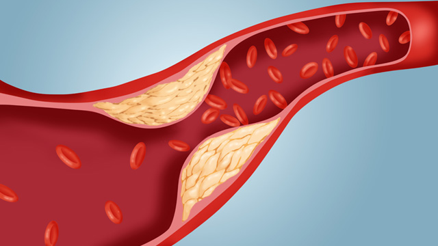 Magas koleszterin miatti plakk az érfalban