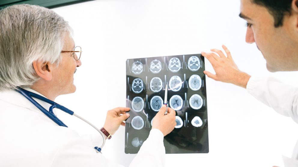 PHOTO: Doctors consult over an MRI scan of the brain.