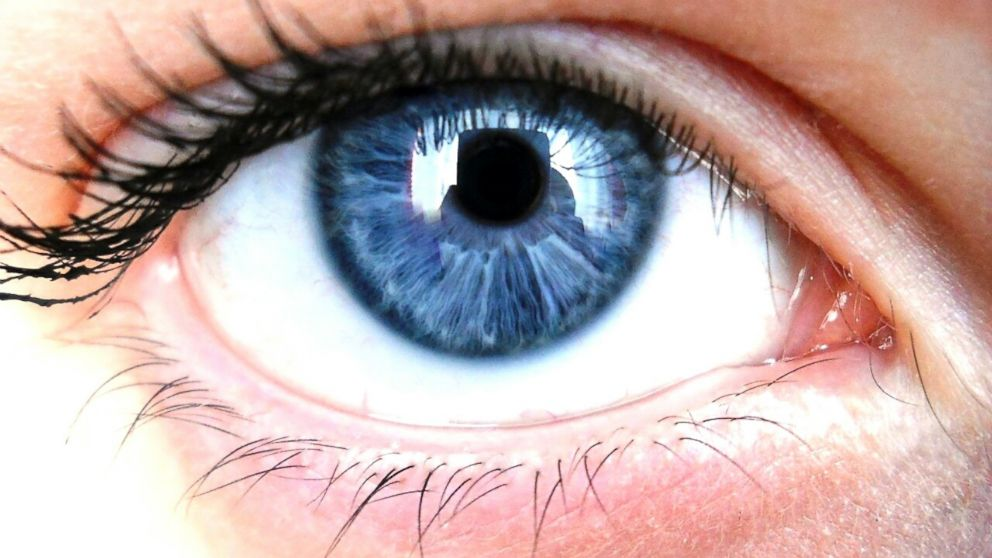 possible link between eye color and alcoholism risk