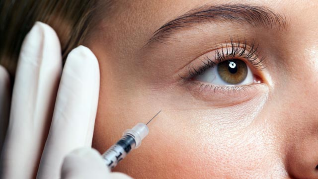PHOTO: A recent report shows a trend in 20-somethings getting botox.