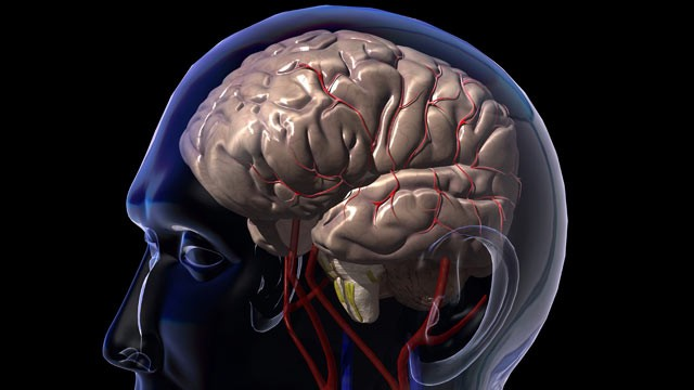 PHOTO: Mini strokes or TIAs temporarily cut off blood flow to the brain, typically causing problems for an hour or two.