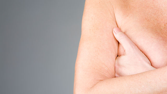 PHOTO: A new vaccine may be able to keep an aggressive type of breast cancer from returning.