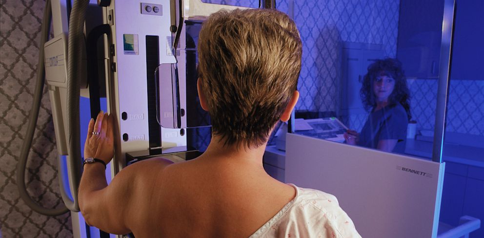 PHOTO: A woman undergoes a mammogram procedure in an undated stock photo.