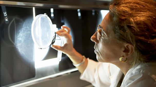 PHOTO: A doctor analyzes a mammogram.
