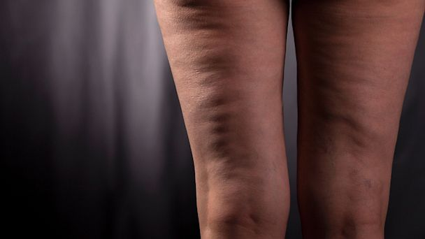 PHOTO: Some remedies, like skin creams or compression-style clothing, are less effective than you may think in minimizing cellulite.
