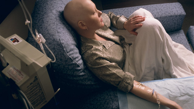 PHOTO: Woman receiving chemotherapy