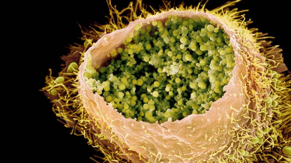 PHOTO: A colorized scanning electron micrograph shows a cultured human cell infected by Chlamydia trachomatis bacteria, appearing as small round particles inside the cell wall.