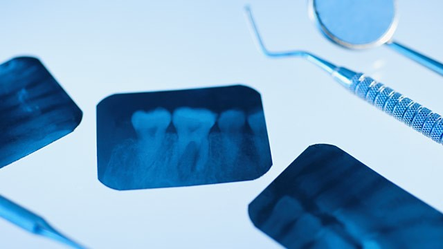 PHOTO: Dental instruments and x-rays