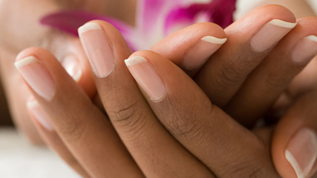 PHOTO: Having abnormal nail color, Agus says, can be a clue something is wrong, healthwise.
