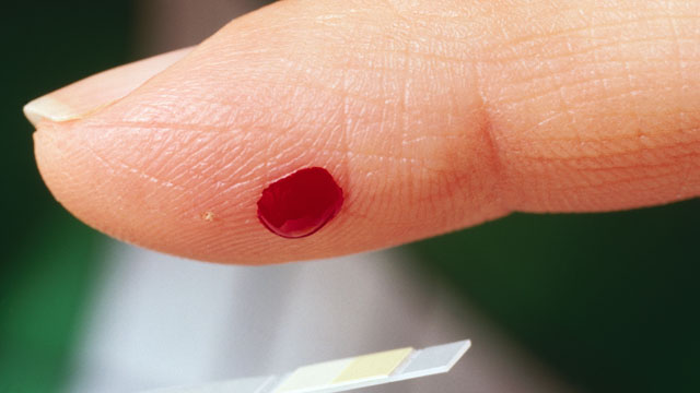 PHOTO: A finger is pricked in this file photo.