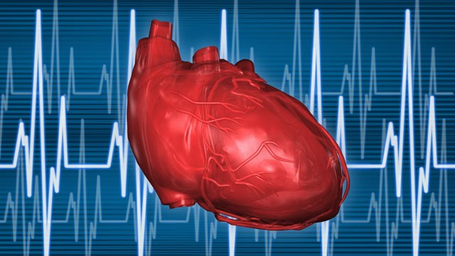 PHOTO: A type of cholesterol many have never heard of, may be a leading cause of heart disease.