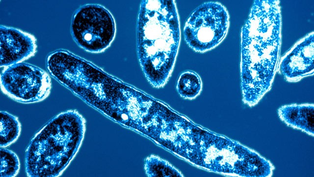 PHOTO: Legionella pneumophila, the bacteria responsible for Legionnaires' disease, is shown.