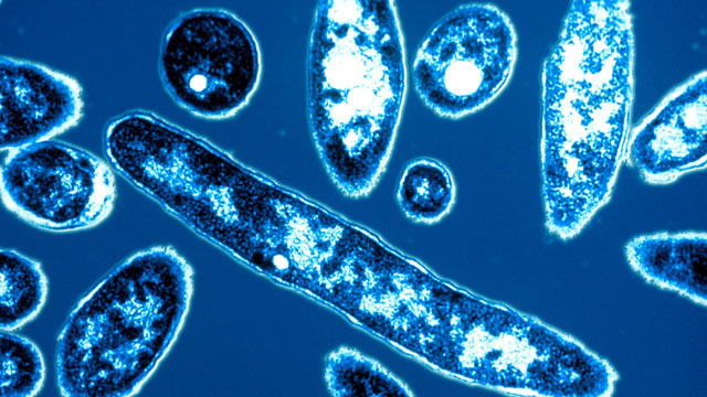 PHOTO: Legionella pneumophila, the bacteria responsible for Legionnaires disease, is shown.