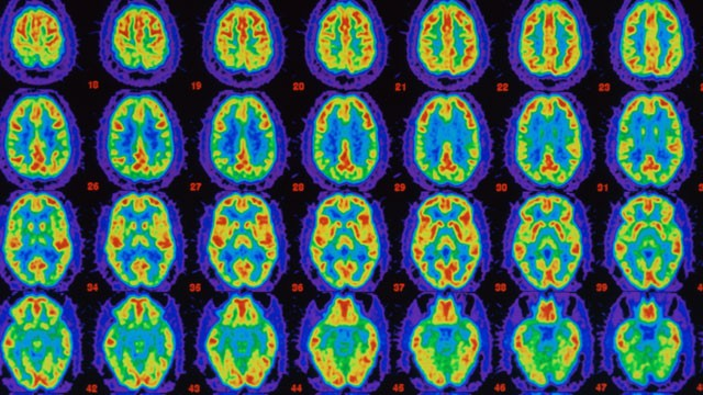PHOTO: PET scans comparing Alzheimer's sufferer's brain with healthy brain.