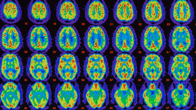 PHOTO: PET scans comparing Alzheimers sufferers brain with healthy brain.