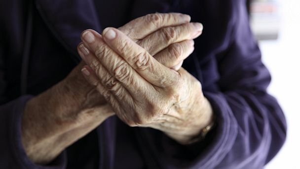 PHOTO: Older woman rubbing hands