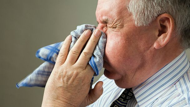 PHOTO: Sneezing fits can be caused by allergies.
