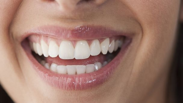 PHOTO: Twenty mistakes you are making with your teeth.