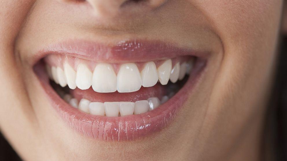 Ventures Teeth
