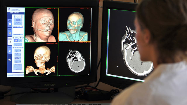 PHOTO: A radiologist looks at the scans of a reconstituted corpse in 3D in order to proceed in a virtual autopsy on September 20, 2011 at the Medical Imagery Departement of the Timone Hospital in Marseille, France.