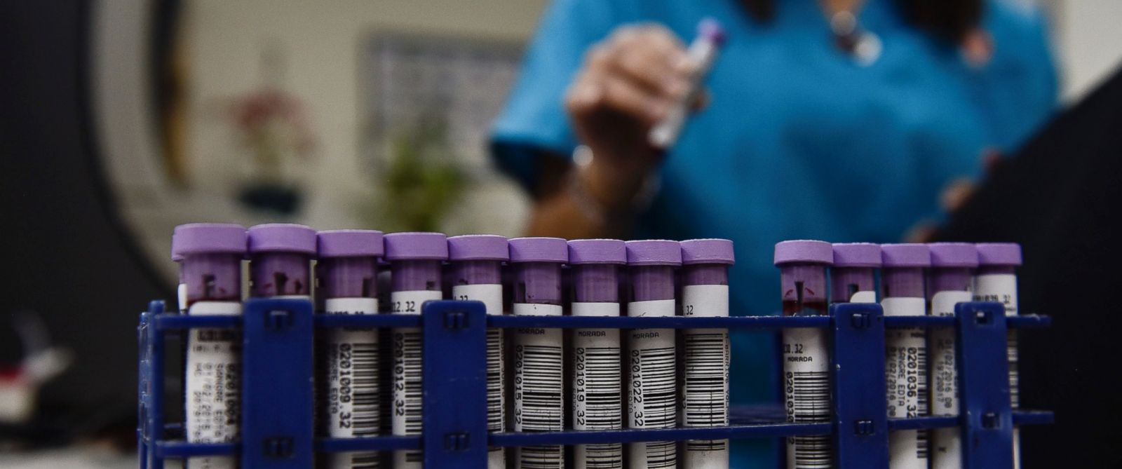 PHOTO: Test tubes with blood samples are analyzed to rule out cases of the Zika virus in a health center in Caracas, Venezuela on Feb. 1, 2016.