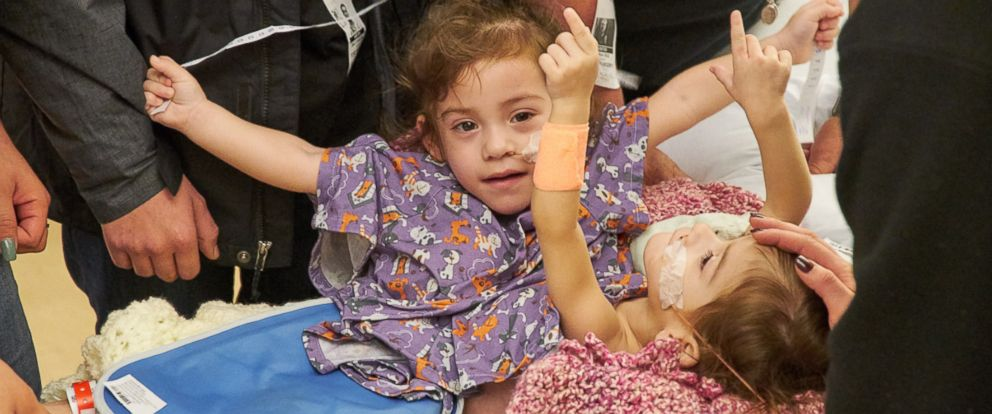 PHOTO: Erika and Eva Sandoval were successfully separated yesterday at Lucile Packard Childrens Hospital.
