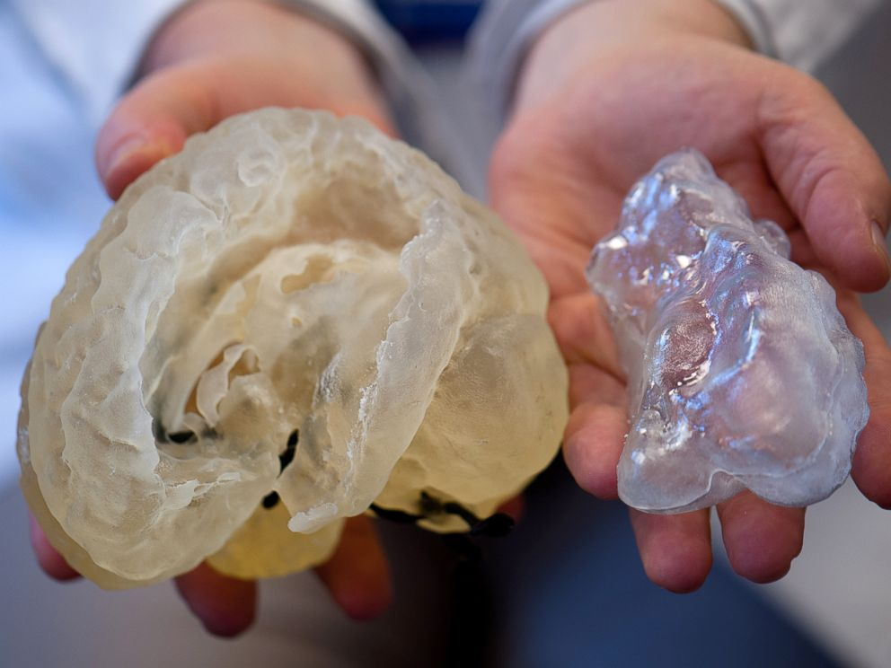 PHOTO: A doctor holds up 3D printed organs, which are used to help doctors practice for their surgeries at Boston Childrens Hospital.