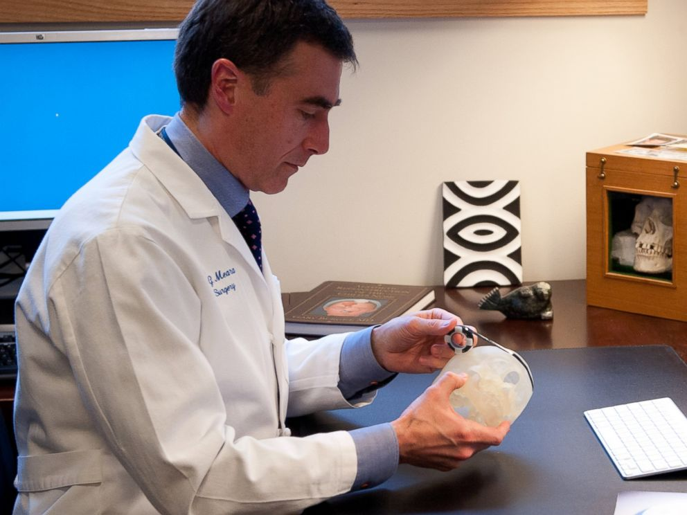PHOTO: Dr. John Meara holds a 3D-printed skull of one of his patients.