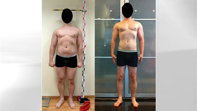 "PHOTO: A New York man who goes by the name Apotheosis underwent two costly surgeries to ""grow"" six inches."