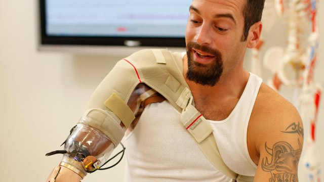 "PHOTO: Glen Lehman testing a ""bionic arm"" at the Rehabilitation Institute of Chicago's Center for Bionic Medicine."