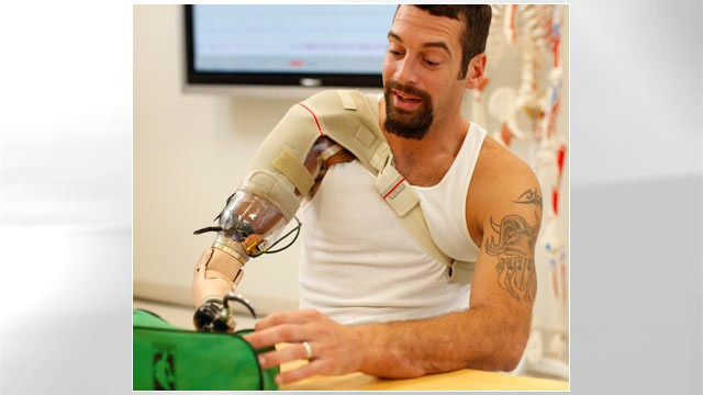 PHOTO: Glen Lehman testing a &quot;bionic arm&quot; at the Rehabilitation Institute of Chicago's Center for Bionic Medicine.