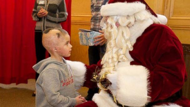 Santa Makes Special Visit to Children's Hospital Burn Unit | abc11.com