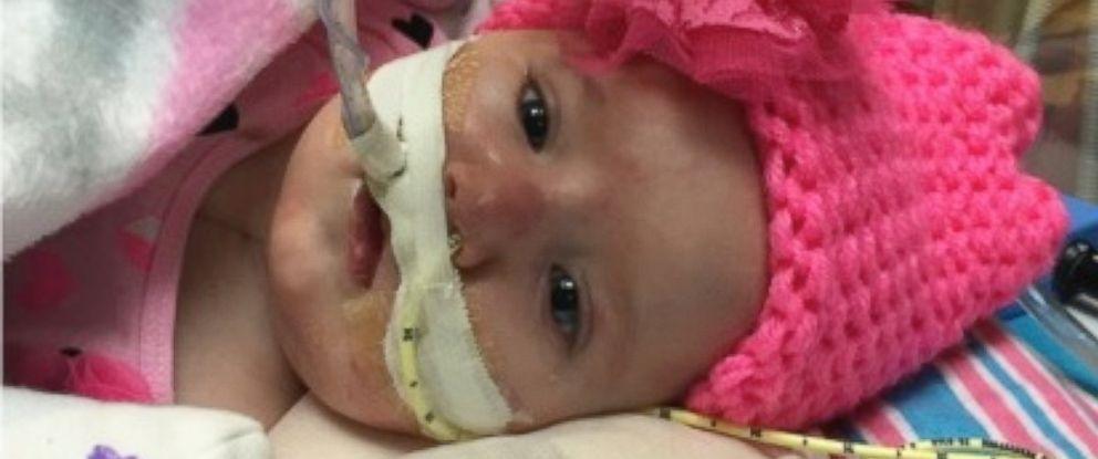 PHOTO: Teegan Lexcen underwent 7 hour heart surgery to fix multiple heart defects.